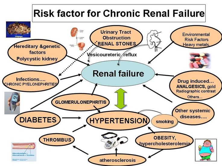 1 reason and 13 factors of kidney stones 94