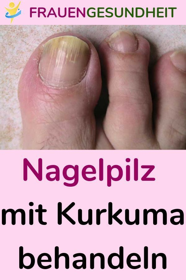 Treat nail fungus with turmeric # Nail fungus #Turkuma #Treating #Healing remedi…
