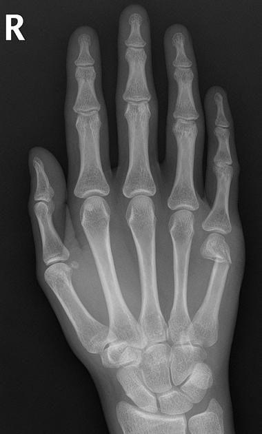 Boxer's fracture | Radiology Case | Radiopaedia.org