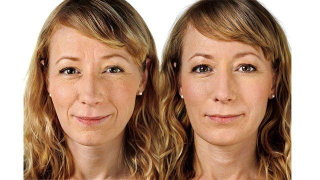 Conducting The Perfect Biological Facelift: Do Facial Revitalization Workout Treatments Work?