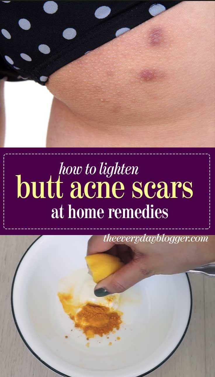 a6ea7a6b66c865209e83ff8924f12bc8 - How To Get Rid Of Back Acne Scars Home Remedies