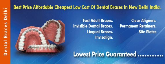 Dental Braces and Orthodontic Treatment Center in New Delhi India #Dental_Braces #Dental_Braces_Delhi #Dental_Braces_India