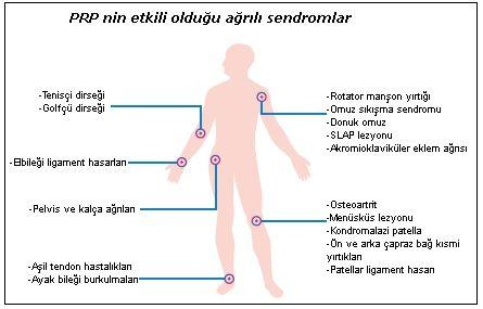 PRP Tedavisi ile tedavi edilen Ağrı Sendromları