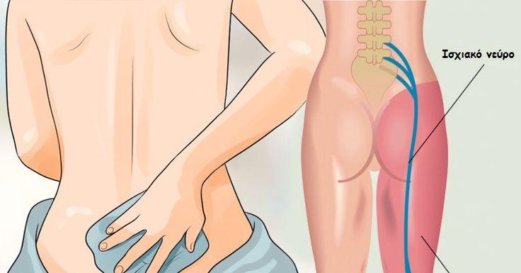 To ισχιακό νεύρο είναι από τα μεγαλύτερα νεύρα του σώματος, ξεκινώντας από το κάτω μέρος της σπονδυλικής στήλης, περνάει από