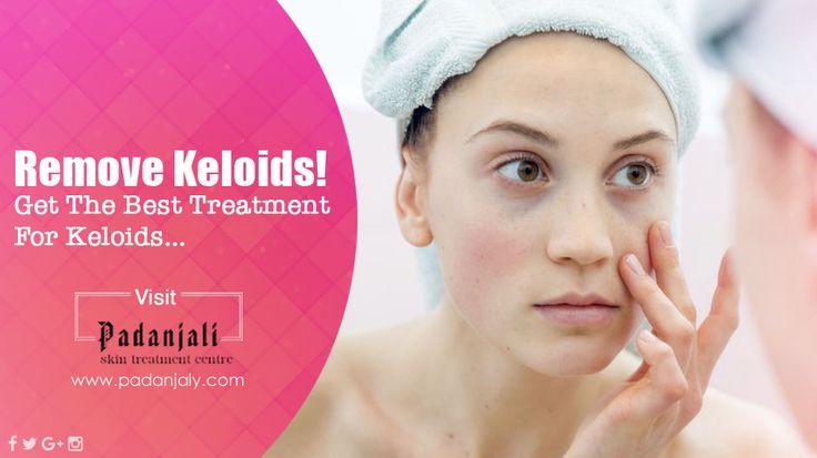 Best Keloids Removing Treatment. 100% Ayurvedic. visit: http://padanjaly.com/keloids-scars-treatment.htm