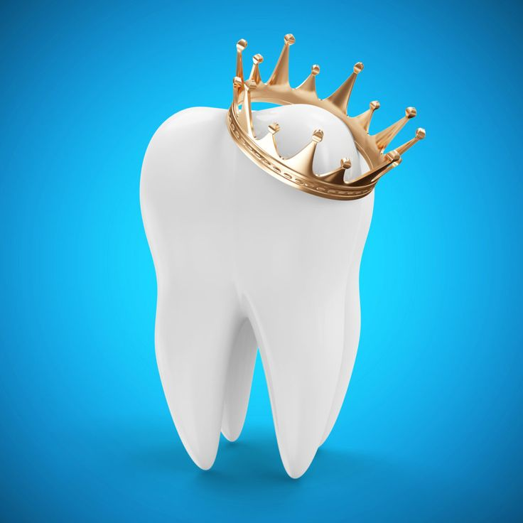 Find out the ways to care for both temporary and permanent #dental_crowns. A dental crown is a simple and convenient way of repairing a tooth damaged by either decay or breakage. It gives shape and size to the tooth, strengthens it and enhances its appearance.