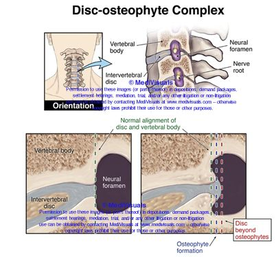 Disc osteophyte complex - visual