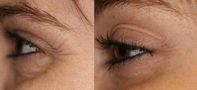 Уход за кожей вокруг глаз - как убрать гусиные лапки