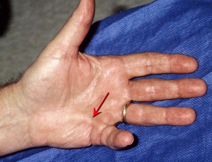 56 best Orthopedic Injury Elbow, Wrist and Hand images on ...
