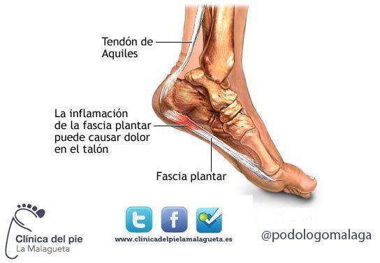 fascitis plantar-clinica_del_pie_la_malagueta