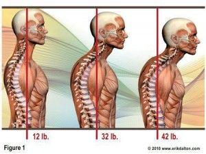 Su Postura y el Dolor de Cuello (Cervicales)     http://www.eliminesudolordeespalda.com/blog