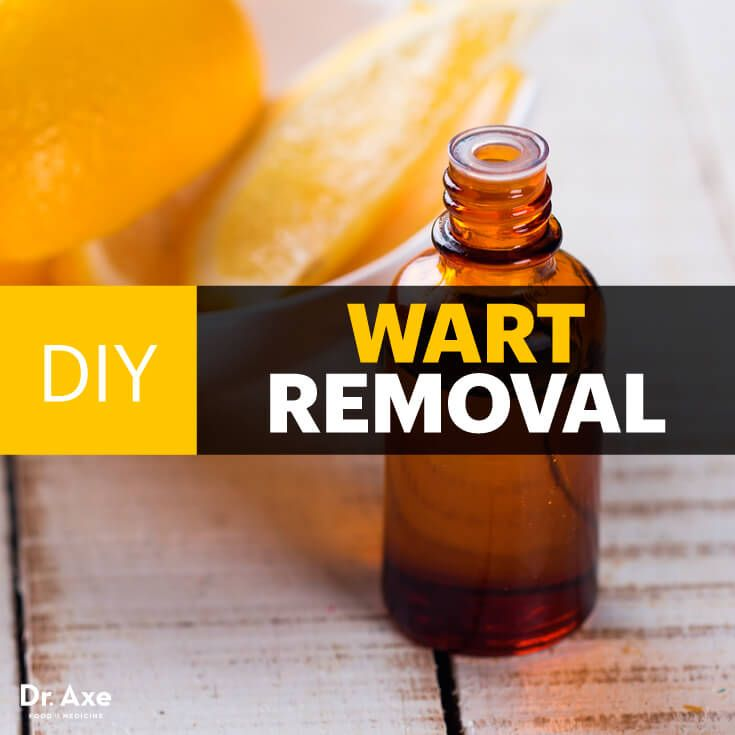DIY wart removal - Dr. Axe http://www.draxe.com #health #holistic #natural