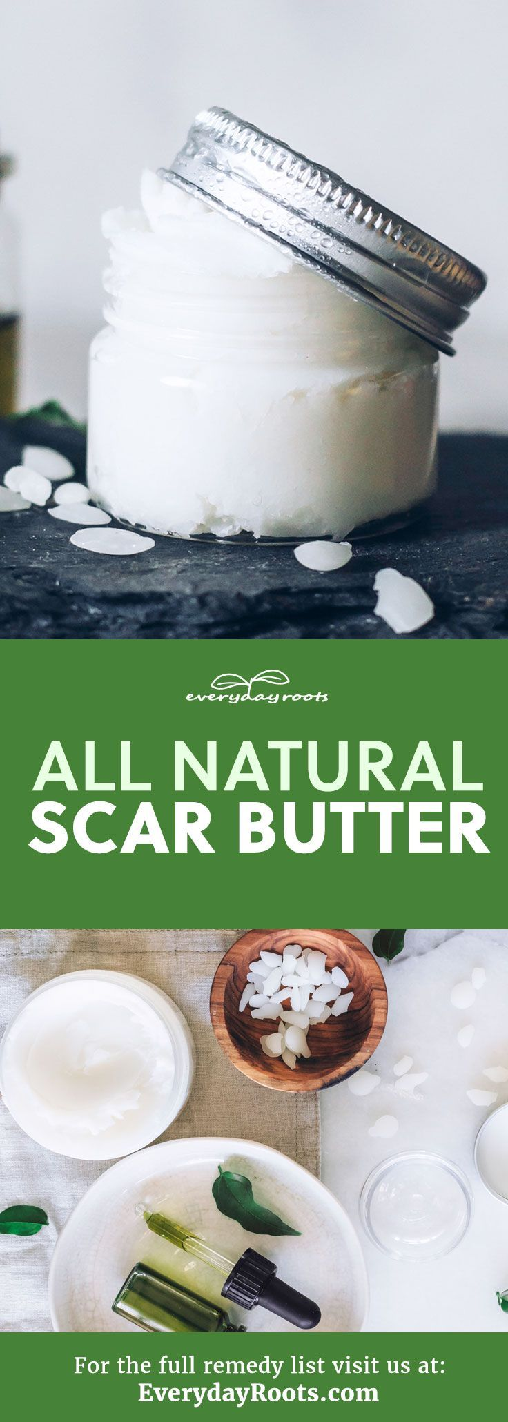 Use this homemade scar butter with shea and avocado oil. | Everyday Roots #DIY  #NaturalScarButter