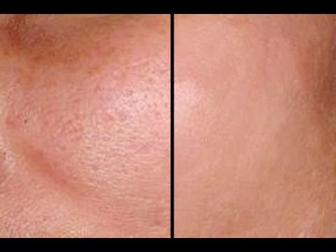 How to make pores disappear: Enlarged pores are a fact of life for some — like breakups and taxes. But just because it's a fact of life doesn't mean you can't do something about it. While it's not technically possible to permanently reduce the size of pores, you can make them look smaller in appearance with a few tips and tricks. Read on if you want your pores to shrink in fright!