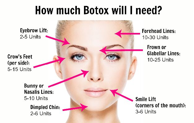 Botox Injections - How Much Do I need?