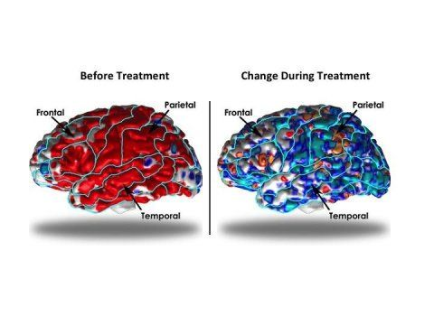 Structural differences in the cerebral cortex have been found in patients with depression. These differences normalize with appropriate medication, report researchers.