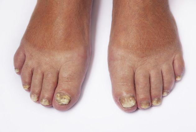 Una receta casera para los hongos en los pies
