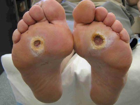 Penyebab Penyakit Diabetes Melitus - Hindari Segera !!!