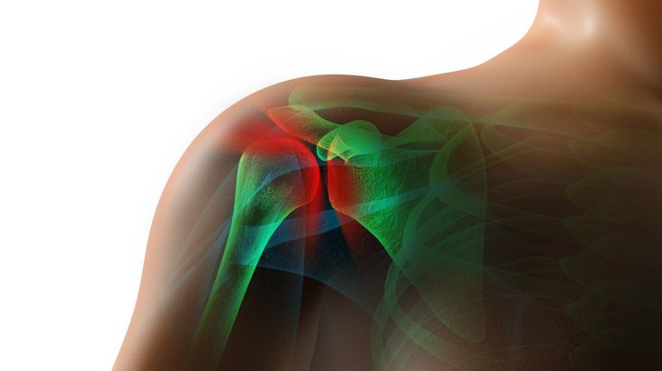Rotator cuff tears are one of the most common reasons why people have shoulder pain.  Many rotator cuff tears can be treated without surgery.  Some may req