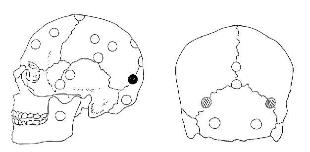 El Glúteo medio REFLEJO NEURO – VASCULAR  Eminencia parietal, parte posterior superior de la oreja