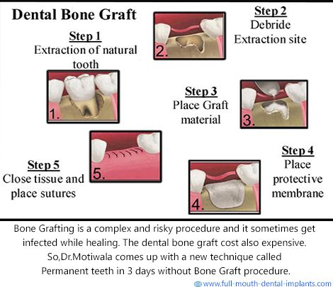 #Bone Grafting is a surgical system that replaces lacking bone to be able to restore bonefractures which are extremely complex, pose a big health hazard to the sufferer (or) fail to heal properly. #Dr.Motiwala comes up with a new technique called Permanent Teeth in 3 Days without Bone Grafting procedure. http://full-mouth-dental-implants.com/bonegrafting.php