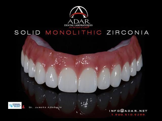 Full Monolithic Zirconia Hybrid Implant Retained Denture Adardentalnetwork Pinhasadar Adar Adn Digitaldentistry Denture Implants Dental Implants Denture