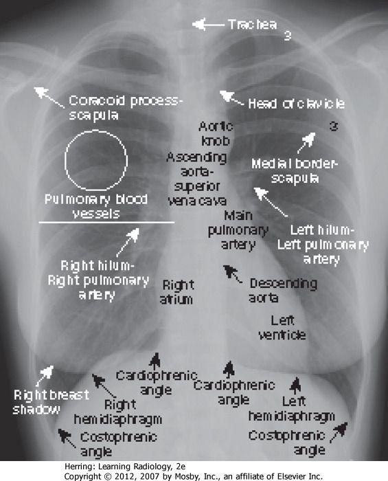 Flashcard: Radiology   Quizlet