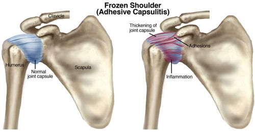 """Adhesive capsulitis or """"frozen shoulder"""" is the stiffening of the shoulder due to scar tissue, which results in painful movement and loss of motion. It occurs in an estimated 2%-5% of the general population. Find out how a physical therapist can help! #physicaltherapy #frozenshoulder"""