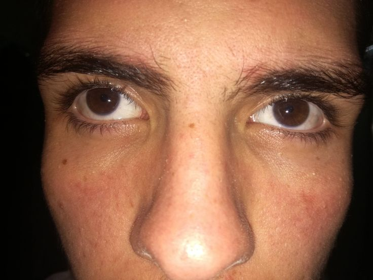 [Skin Concerns] what is this line i have under my eyes looks like sunburn but its not i have it for a year how do i get rid of it? [Skin Concerns]