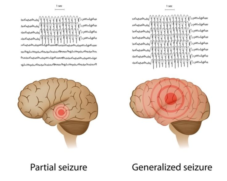 A focal onset seizure, also known as a partial seizure, is when a seizure occurs in just one area of the brain. - Generalized seizures affect both cerebral hemispheres (sides of the brain) from the beginning of the seizure. (grand mal seizures) -- Get more information about epilepsy seizures. Anyone, anytime, any age, any gender, or any race can have a seizure. Follow Angels Of Epilepsy on #Facebook #Pinterest #Twitter & our #YouTube channel to see video of first-aid tips for seizures.