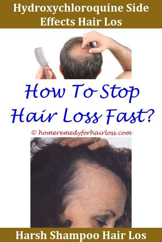 Hair Loss Hair Loss Siblings Big Three For Fighting Hair Loss