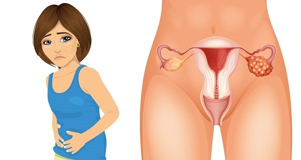 4 Early Symptoms of Ovarian Cancer That Every Woman Needs to Know-Cancer, as a broad spectrum of disease, is currently one of the leading causes of death worldwide, of which ovarian cancer is one of the worst – and least discussed Ovarian cancer occurs when…