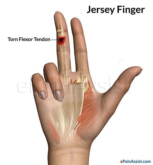 My Ring Is Causing Finger Pain And Wrist