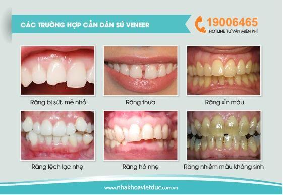 Giá dán răng sứ veneers như thế nào hiện nay   Nha khoa Quốc tế Việt Đức