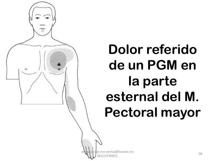 Dolor referido               de un PGM en                  la parte              esternal del M.              Pectoral may...