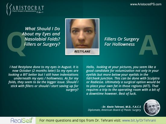 Q: What Should I Do About my Eyes and Nasolabial Folds? Fillers or Surgery?    http://www.AristocratPS.com/qa-what-should-i-do-about-my-eyes-and-nasolabial-folds-fillers-or-surgery