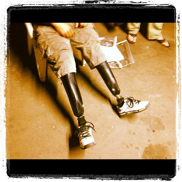 """The whole reason why the Out On A Limb charity was started... 2 lost legs and the realization that goes with it."" My #Instagram - June 1, 2012"