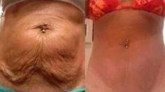 Voici comment se débarrasser naturellement de la peau Saggy sur un estomac…