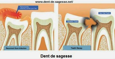 27 best dent de sagesse images on pinterest wisdom tooth oral health and dental care. Black Bedroom Furniture Sets. Home Design Ideas