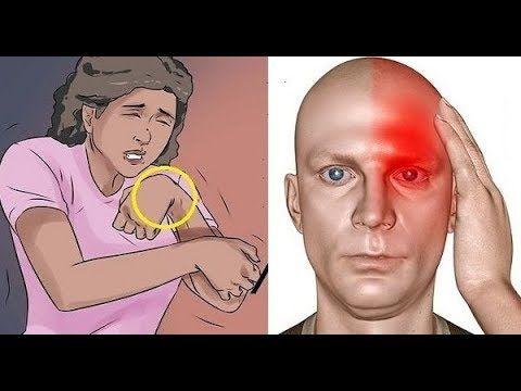10 alarmierende Symptome, dass Sie einen Schlaganfall haben können - YouTube