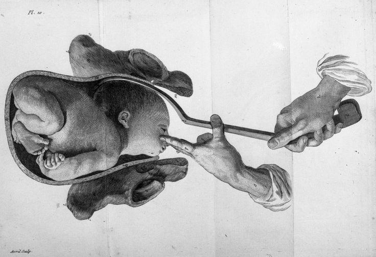 histoire de l'obstétrique | art des accouchemens - Obstétrique. Instruments. Accouchement ...