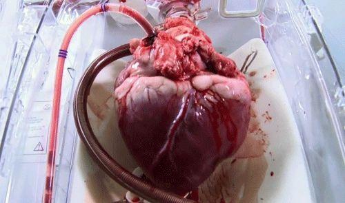 человеческое сердце в разрезе - Поиск в Google
