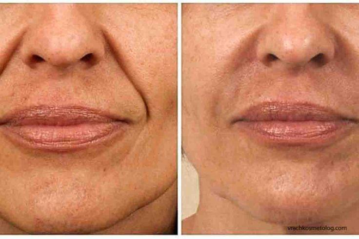Контурная пластика лица: фото до и после