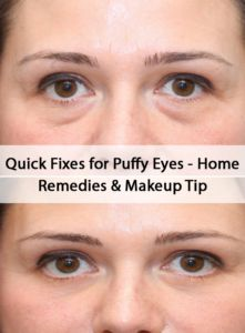 6 Quick Fixes for Puffy Eyes � Home Remedies & Tips