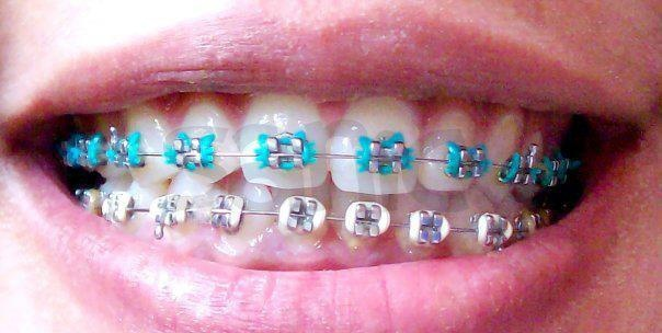 11 Curated Braces Ideas By Jonnybrn Mondays Blue And