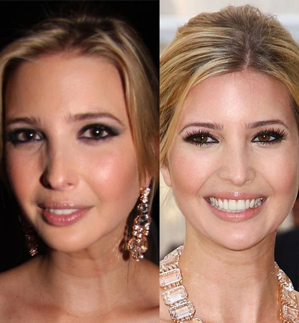 Ivanka Trump plastic surgery rumor is going wild nowadays; many people ask whether the rumor is true or no more than just a gossip. Description from celebritysurgerynews.com. I searched for this on bing.com/images