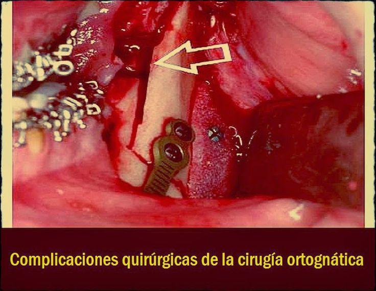 Complicaciones quirúrgicas de la cirugía ortognática | OVI Dental