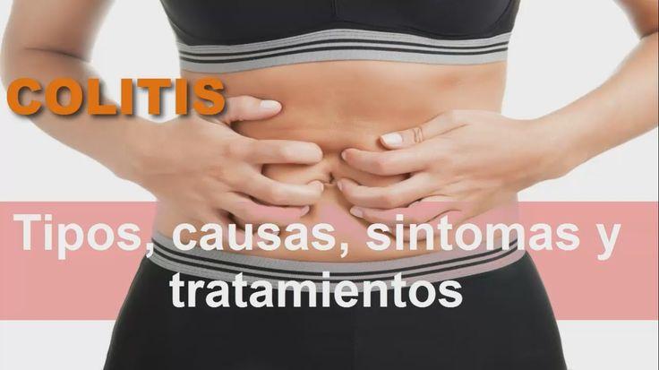 Remedios caseros para la colitis: Colitis Ulcerosa