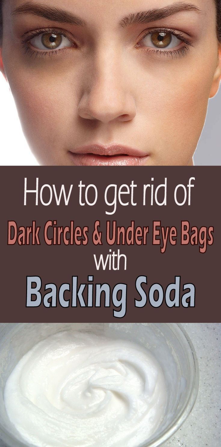 How to get rid of dark circles and under eye bags - Wiki Remedies