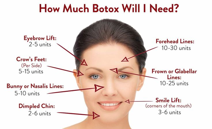 Botox NYC by Beauty Fix MedSpa, NYC's premier body sculpting and skin rejuvenation center. Starting at $99 dollars. Call for a free consultation today!
